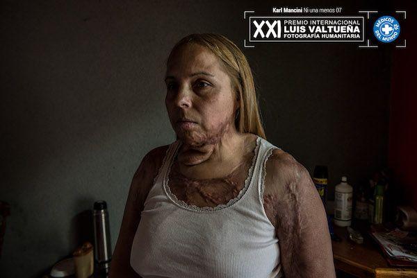 Karl Mancini. Ni una menos. Karina fue quemada por su marido alcohólico tras 11 años de malos tratos.